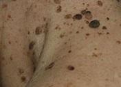 Виды и способы удаления кератомы — доброкачественной опухоли кожи