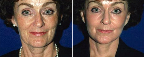 Мезотерапия лица до и после