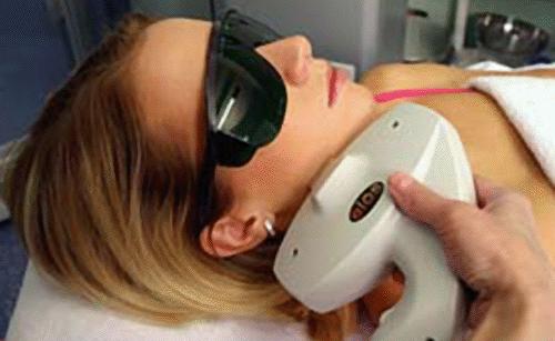 Веснушки лазерное лечение
