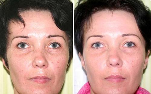Вакуумный массаж для лица до и после