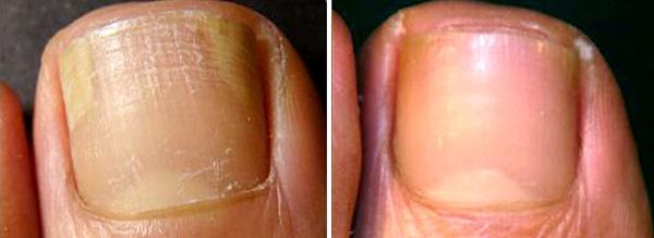 До и после лечения грибка ногтей
