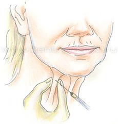 Уколы в шею для омоложения