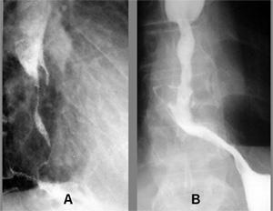 Лечение рака пищевода в ГНЦ лазерной медицины