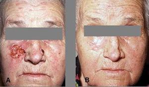 Лечение рецидива рака языка после лучевой терапии методом ФДТ.