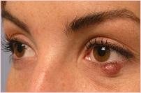 Лазерное удаление жировика на глазу