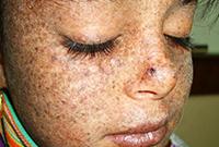 Новообразования кожи