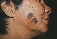 Родинки наросты на коже 108