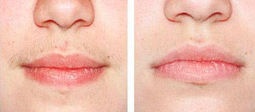 лазерная эпиляция над губой отзывы