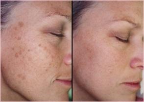 Результат лазерного удаления пигментации кожи