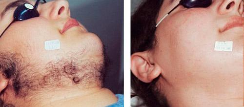 Результат лазерной эпиляции щек