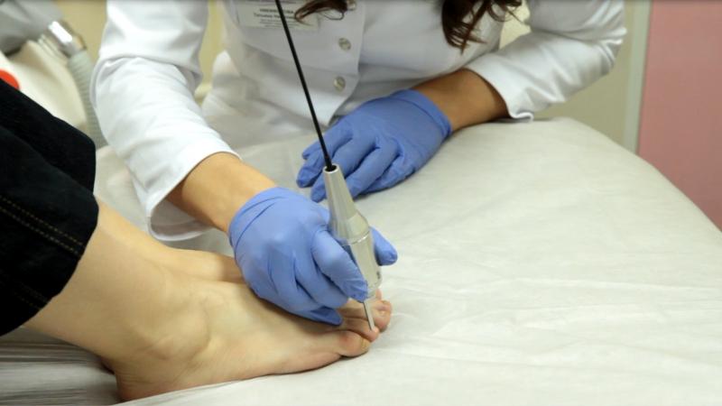flukonazol-otzivi-pri-lechenii-gribka-nogtey-na-nogah