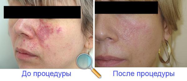 Результат удаления сосудистых звездочек на лице