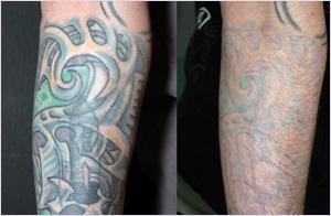 Удаление татуировок в центре лазерной