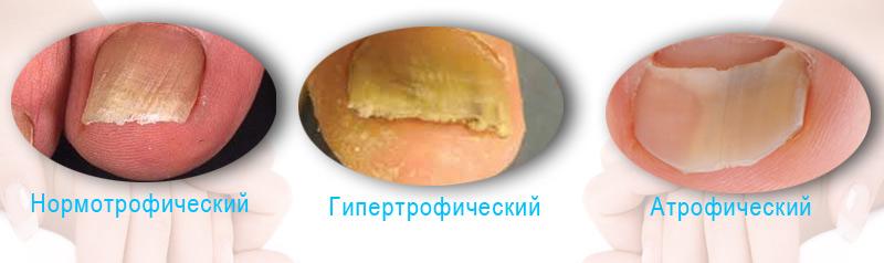 klotrimazol-maz-ot-gribka-nogtey-instruktsiya
